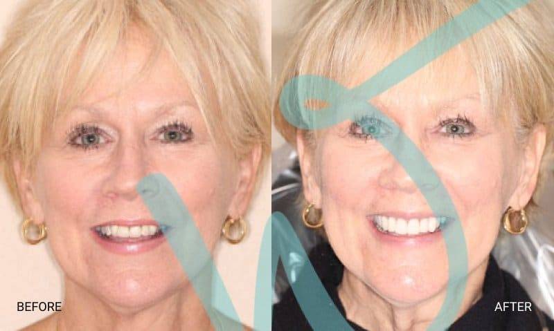 Terry's Partial Smile Makeover with Crowns and Veneers