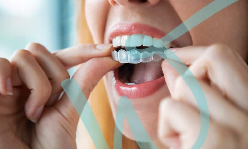 What you should know about Invisalign